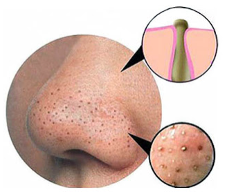 blackheads_nose