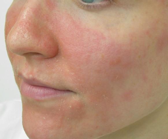 Facial-eczema-1